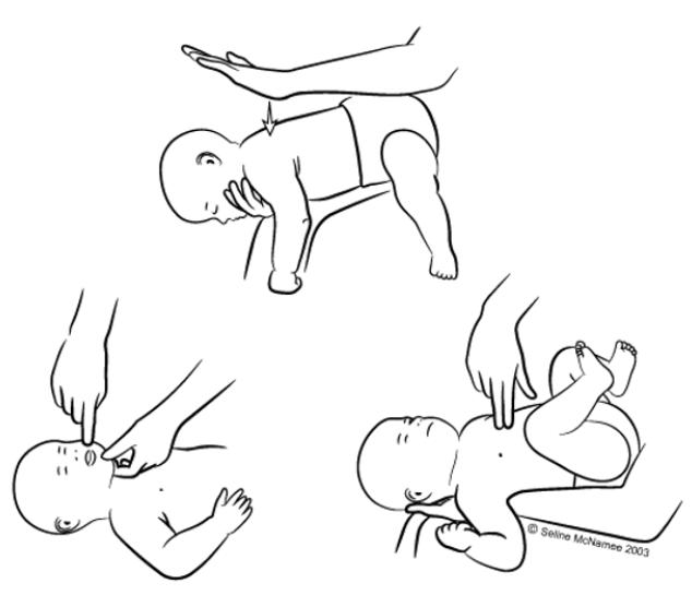 Захранване на бебе - Първа помощ при задавяне