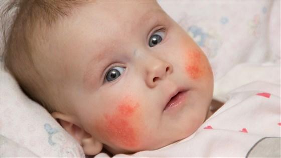 Захранване на бебе - Алергия при захранване